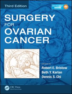 Surgery for Ovarian Cancer